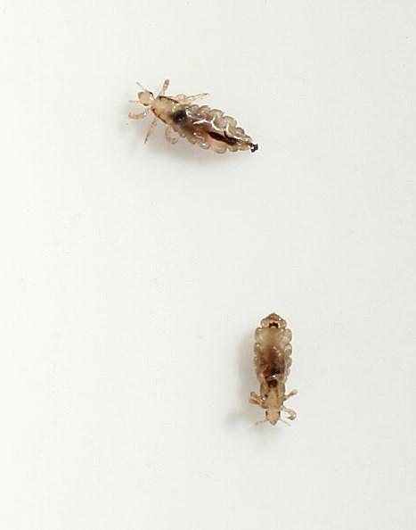 Common Head Lice